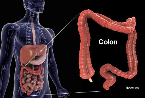 S 237 Ntomas Del C 225 Ncer De Colon 187 Sintomas Del Cancer