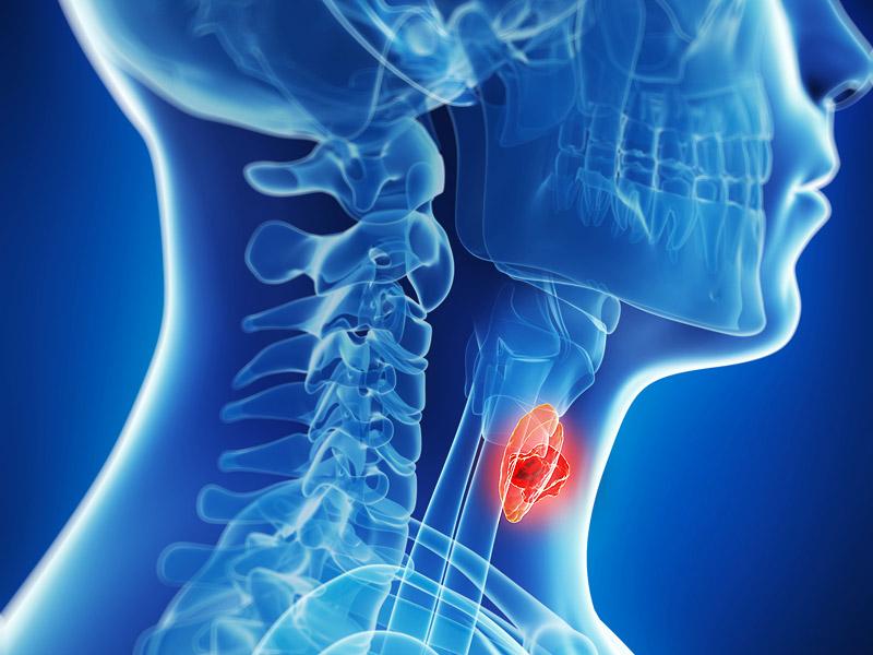 síntomas del cáncer de garganta