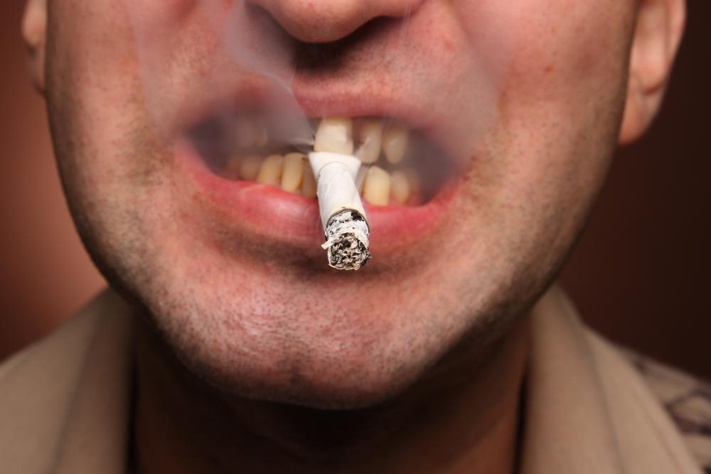 cáncer de boca2