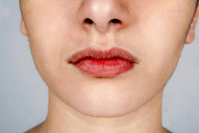 síntomas cáncer de boca
