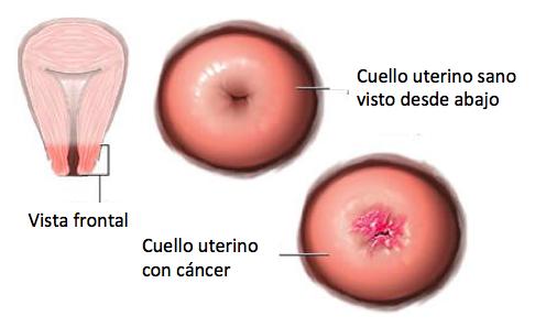 útero cancer síntomas