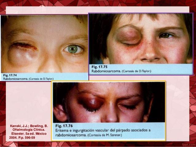Rabdomiosarcoma2