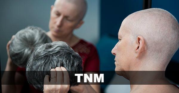 Qué es TNM en cáncer
