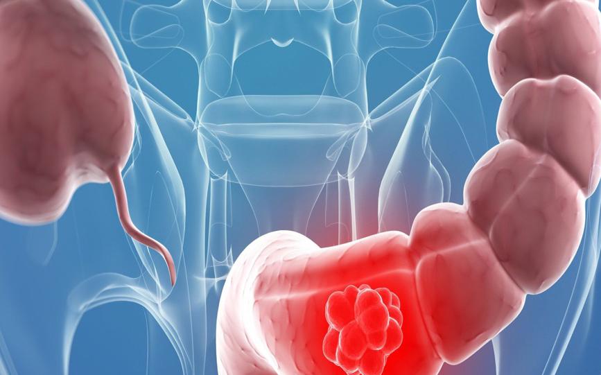 cancer de la colon negii plantari tratamentul cu azot lichid