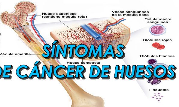 sintomas cancer huesos