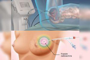 braquiterapia-de-próstata-con-semillas
