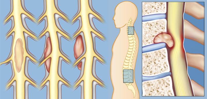 Tumores en la espalda y columna