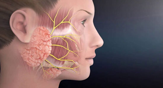 Tumor de Warthin