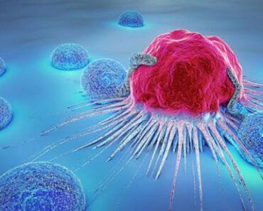 Tumores Neuorendocrinos