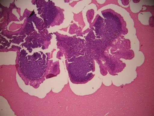 Cistadenoma papilar linfomatoso benigno